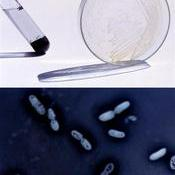 Cultivo y microfotografía de la bacteria azotobacter