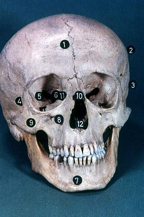 Screenshot 2 de Galería #86997 - Huesos del cráneo y de la cara