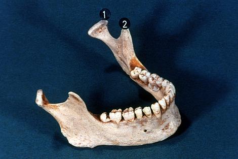 Screenshot 3 de Galería #86997 - Huesos del cráneo y de la cara