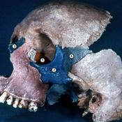 Huesos del esplacnocráneo