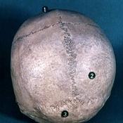Visión superior de la cara externa de la calota craneal