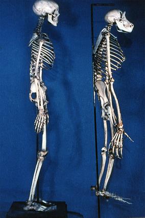 Screenshot 1 de Galería #86999 - Huesos del tronco y las extremidades