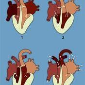Movimientos del corazón