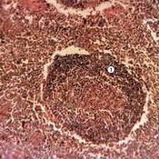 Folículo linfático