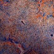 Tejido conjuntivo del hígado