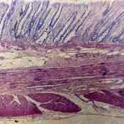 Corte transversal del intestino grueso