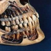La dentición